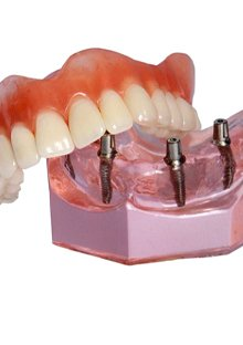 A model of an implant-retained denture.