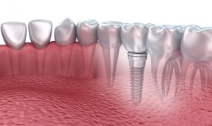 Did you know that dental implants in Satellite Beach can last a lifetime? Dr. Merrill Grant explains all their benefits in this post.