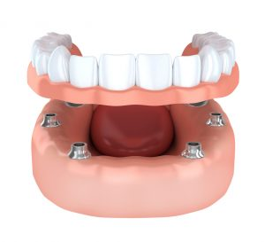 With life-like dentures from your dentist in Satellite Beach, the only person who'll know you have artificial teeth is you.